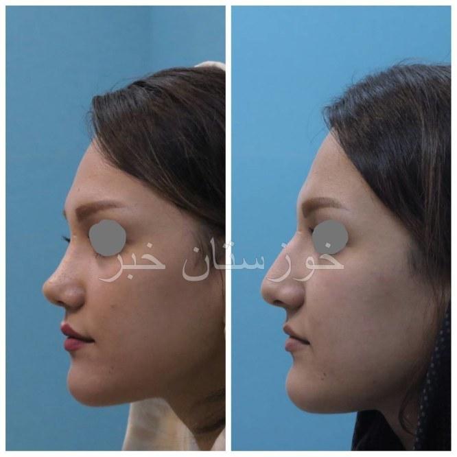 دکتر شهریار خوشرفتار جراح زیبایی بینی 13 دکتر شهریار خوشرفتار جراح زیبایی بینی در اهواز